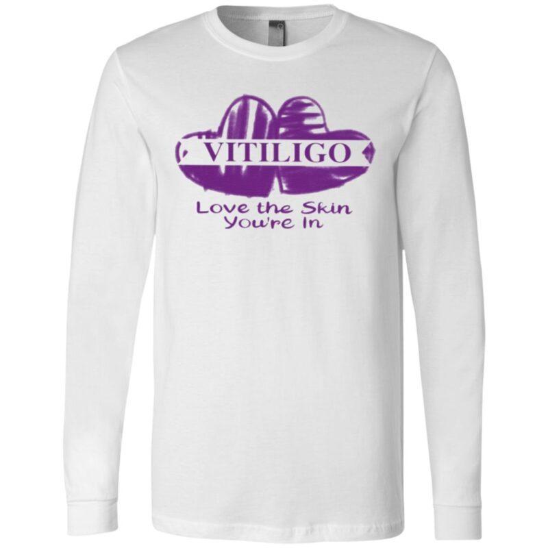 Vitiligo Love The Skin You're In T Shirt
